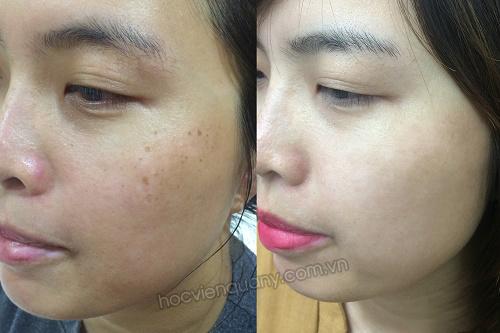 Trước và sau khi sử dụng kem dưỡng da SK Ginseng